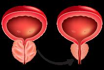 Fase #8 - Hábitos que Salvam uma Próstata Doente
